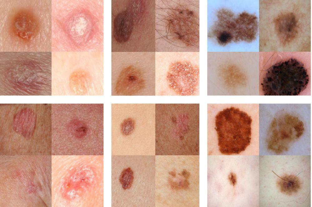 Afbeeldingsresultaat voor huidkanker